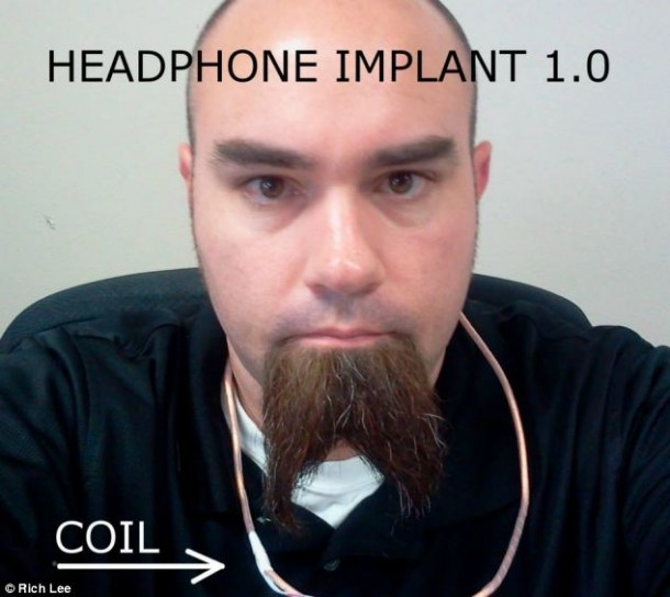 Rich Lee and his implant