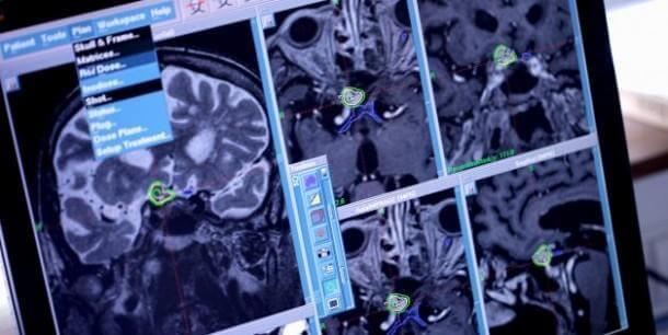 Head Transplantation – How far are we 3