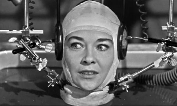Head Transplantation – How far are we