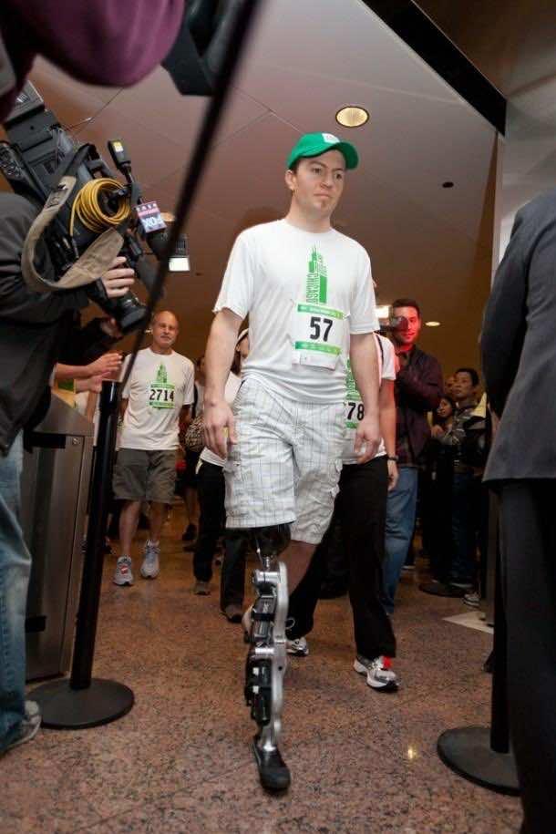 Bionic Leg – A reality 3