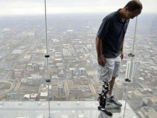 Bionic Leg – A reality 4