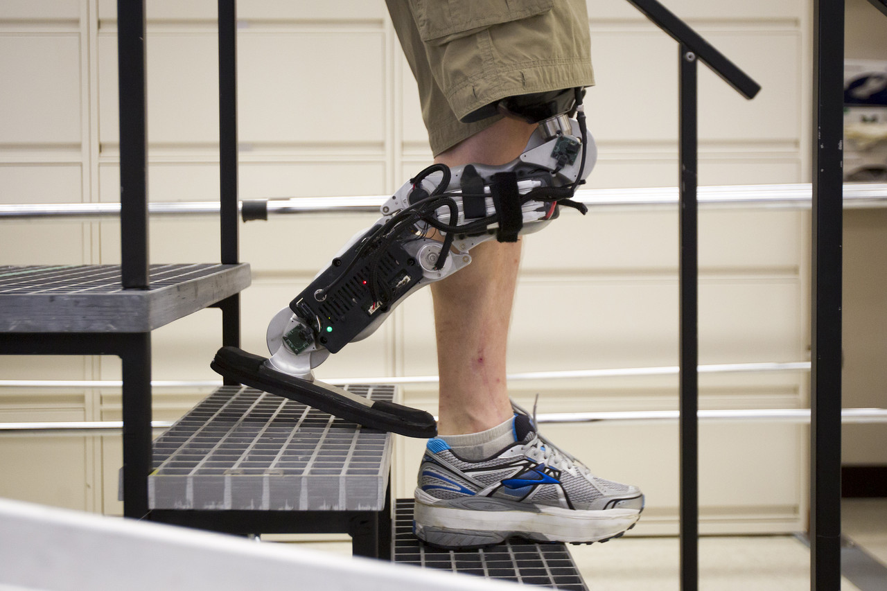 Bionic Leg Gives New Hope To Disabled People