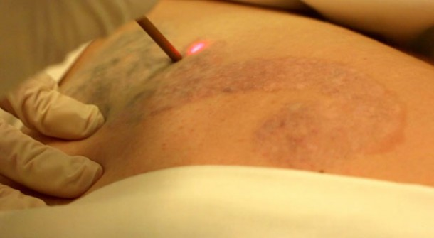 Get Rid Off Your Tattoo In Using Modern Laser Technology