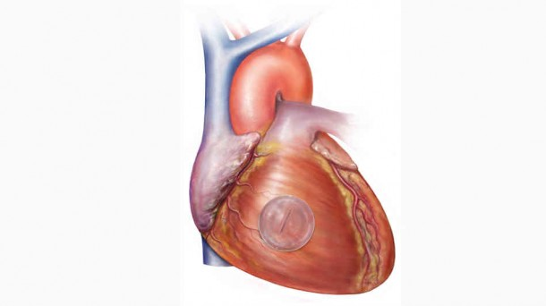 Heart being repaired