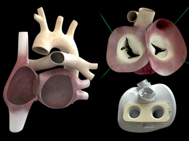Smart Artificial Heart - Carmat