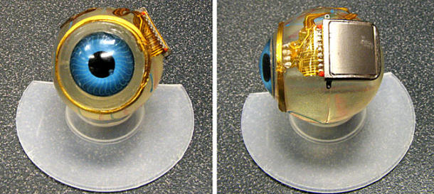 bionic eye implant