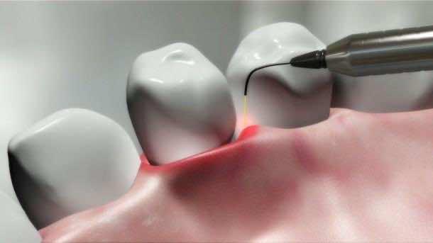 Laser and Dental 4
