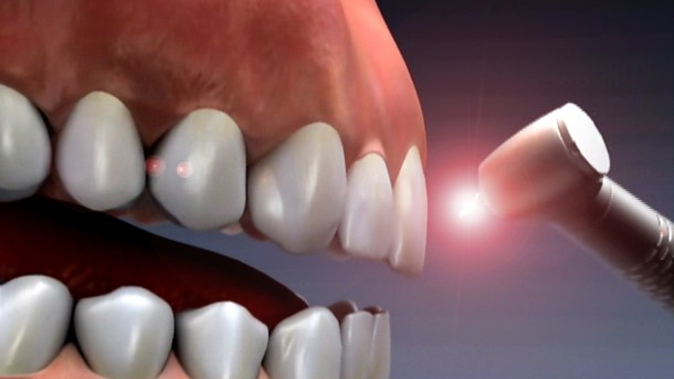 Laser and Dental 7