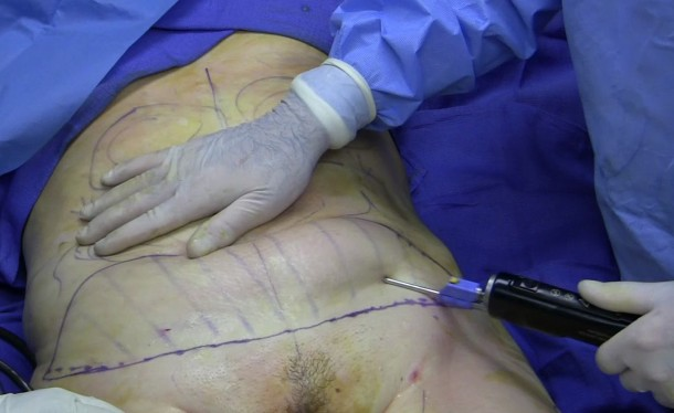Improved Liposuction3