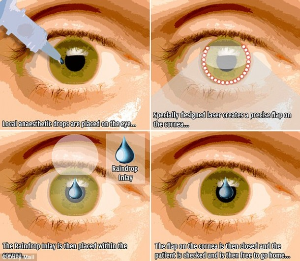 Raindrop Implant to Cure Near-Medium Vision
