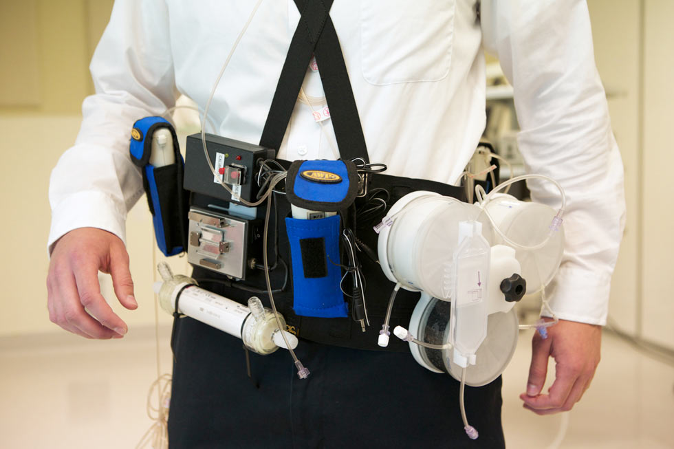 Wearable Artificial Kidney 4