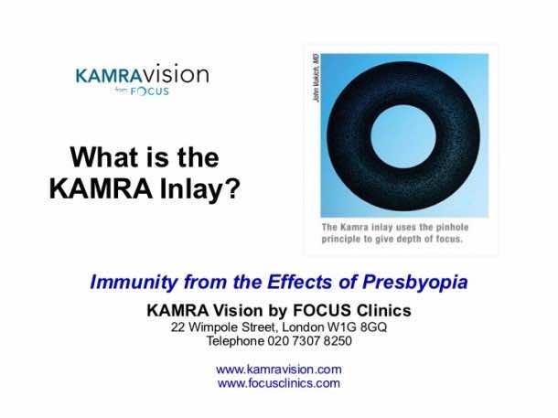 Get Rid of Presbyopia – Kamra Inlay2