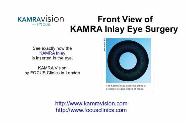 Get Rid of Presbyopia – Kamra Inlay4