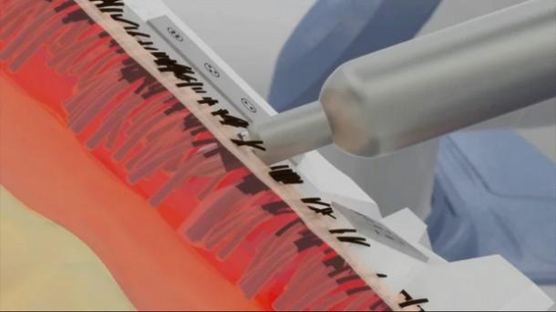 Restoration Robotics' ARTAS – Fighting Baldness5
