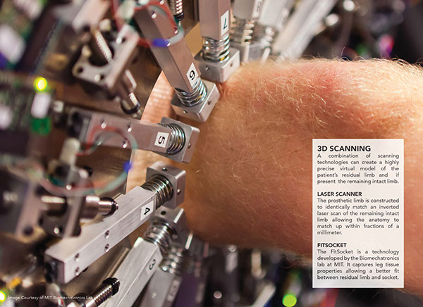 3D printed Exo-Prosthetic leg 2