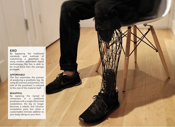 3D printed Exo-Prosthetic leg 3