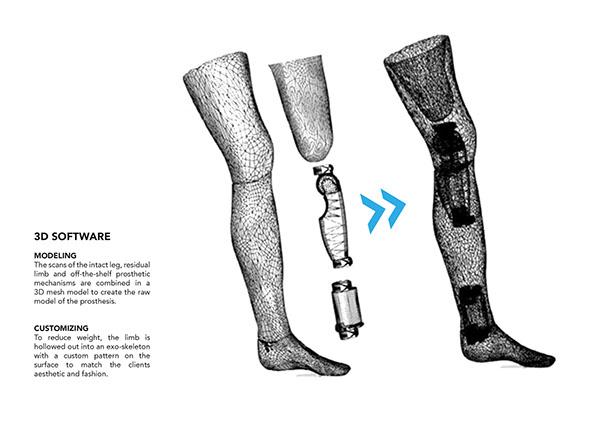 3D printed Exo-Prosthetic leg