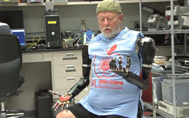 Amputee Controls 2 Prosthetic Limbs by Using Mind 2