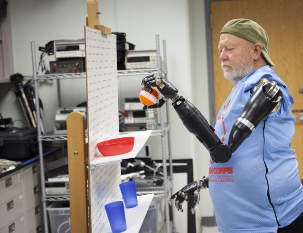 Amputee Controls 2 Prosthetic Limbs by Using Mind 3