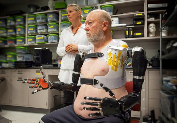 Amputee Controls 2 Prosthetic Limbs by Using Mind 4