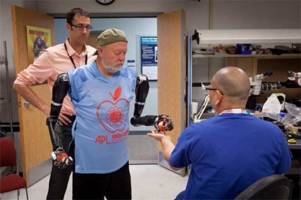 Amputee Controls 2 Prosthetic Limbs by Using Mind