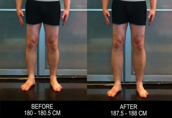 Increase Height By Having Your Legs Broken2