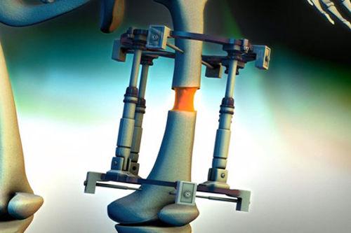 Increase Height By Having Your Legs Broken3