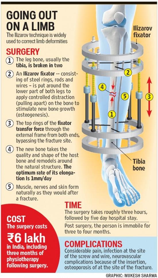 Increase Height By Having Your Legs Broken4