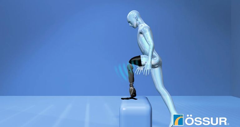 Mind Controlled Bionic Leg Prosthesis 4