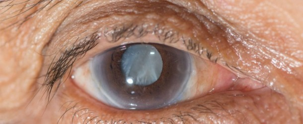 Eye Drops Are The Alternative To Cataract Surgery 2