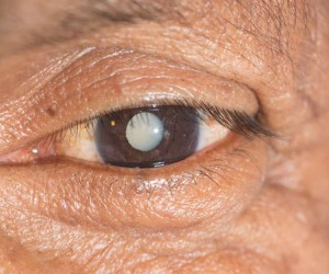 Eye Drops Are The Alternative To Cataract Surgery