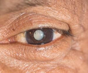 Eye Drops Are The Alternative To Cataract Surgery