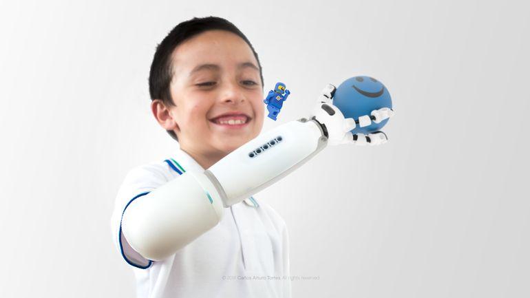 LEGO Prosthesis Lets Amputated Children Make Their Own Artificial Hand