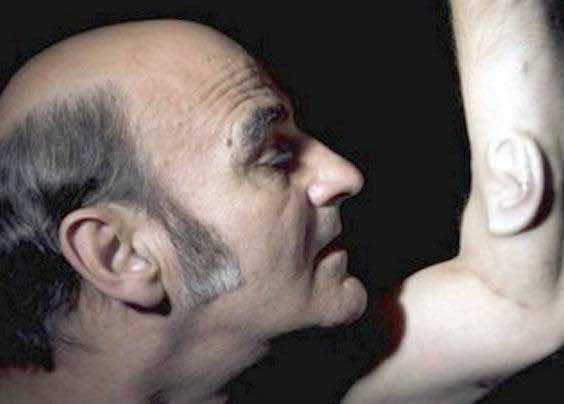 Australian Guy Implants Ear On His Arm