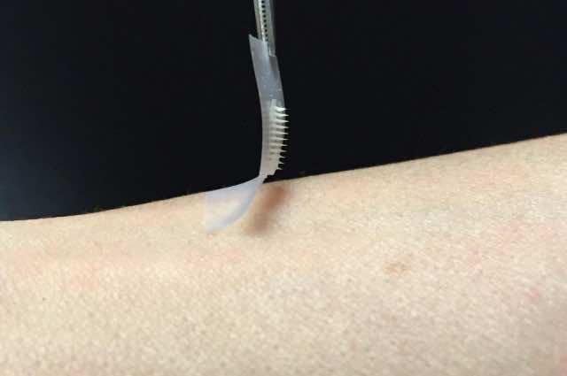 Smart Insulin Patch Works Like A Charm