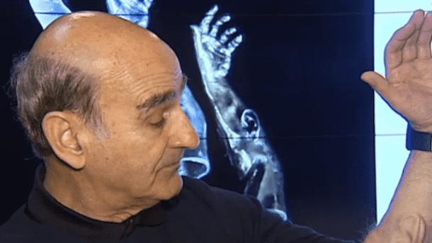 artist-implants-ear-in-arm-ZsX
