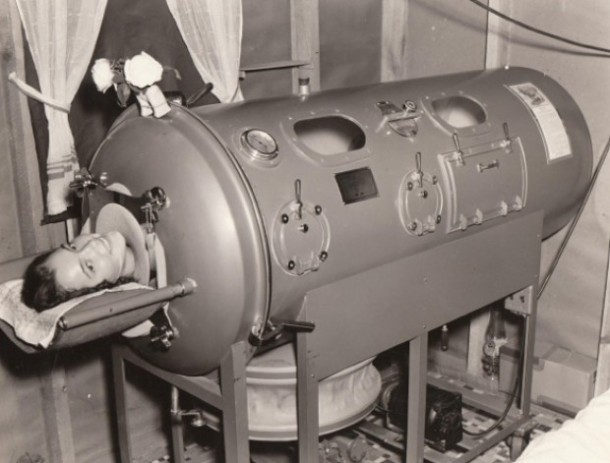 iron lung3