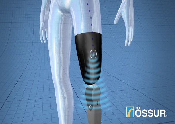 Mind-Controlled Bionic Limb For Amputees