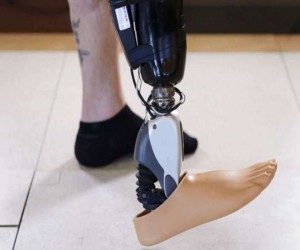 Mind-Controlled Bionic Limb For Amputees 3