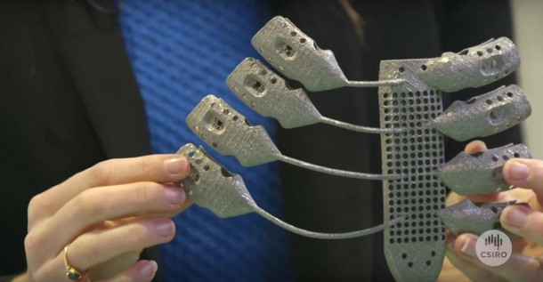 Patient Suffering From Cancer Received World's First 3D Printed Rib Cage 3