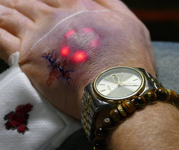 Implanting LED Lights Under Your Skin Is The Latest Biohacking Trend 2