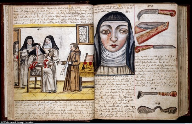 This Is How Surgeries Were Done In 17th Century When Anesthesia Was Not Invented Yet 10