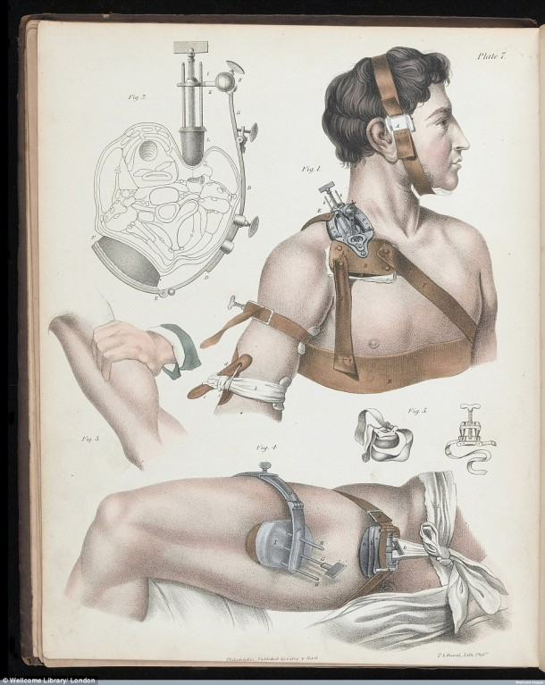This Is How Surgeries Were Done In 17th Century When Anesthesia Was Not Invented Yet 11