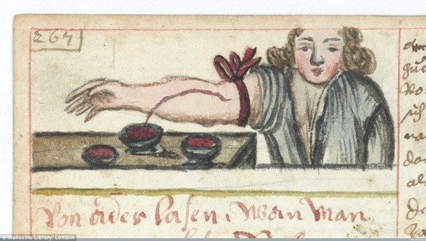 This Is How Surgeries Were Done In 17th Century When Anesthesia Was Not Invented Yet 15