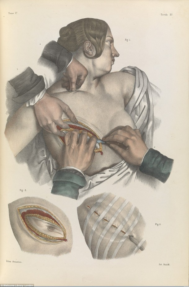 This Is How Surgeries Were Done In 17th Century When Anesthesia Was Not Invented Yet 5