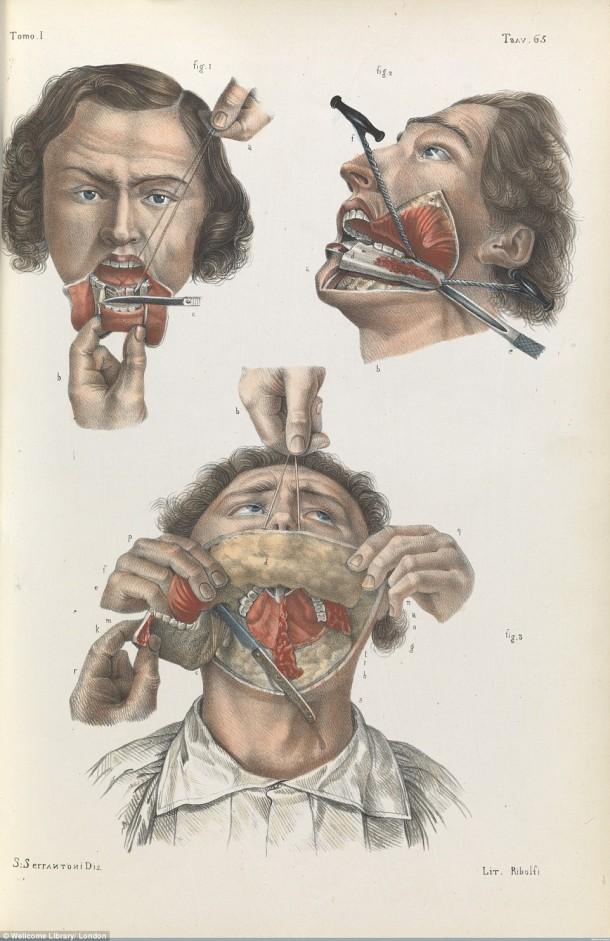 This Is How Surgeries Were Done In 17th Century When Anesthesia Was Not Invented Yet 6