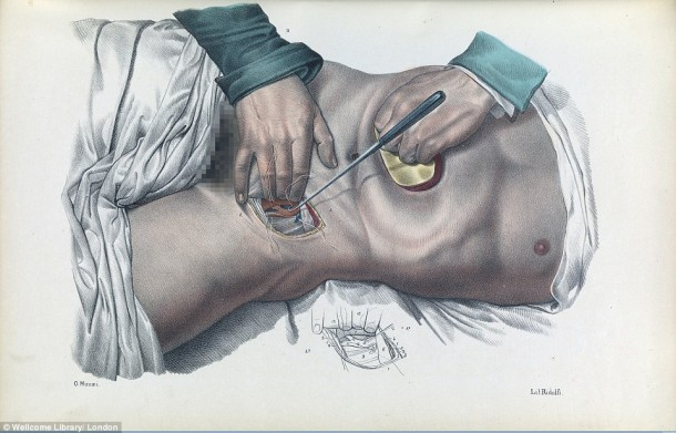 This Is How Surgeries Were Done In 17th Century When Anesthesia Was Not Invented Yet 7