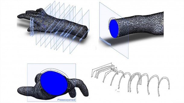 3D-printed Orthosis Helps Patients Suffering From Mild Paresis 2