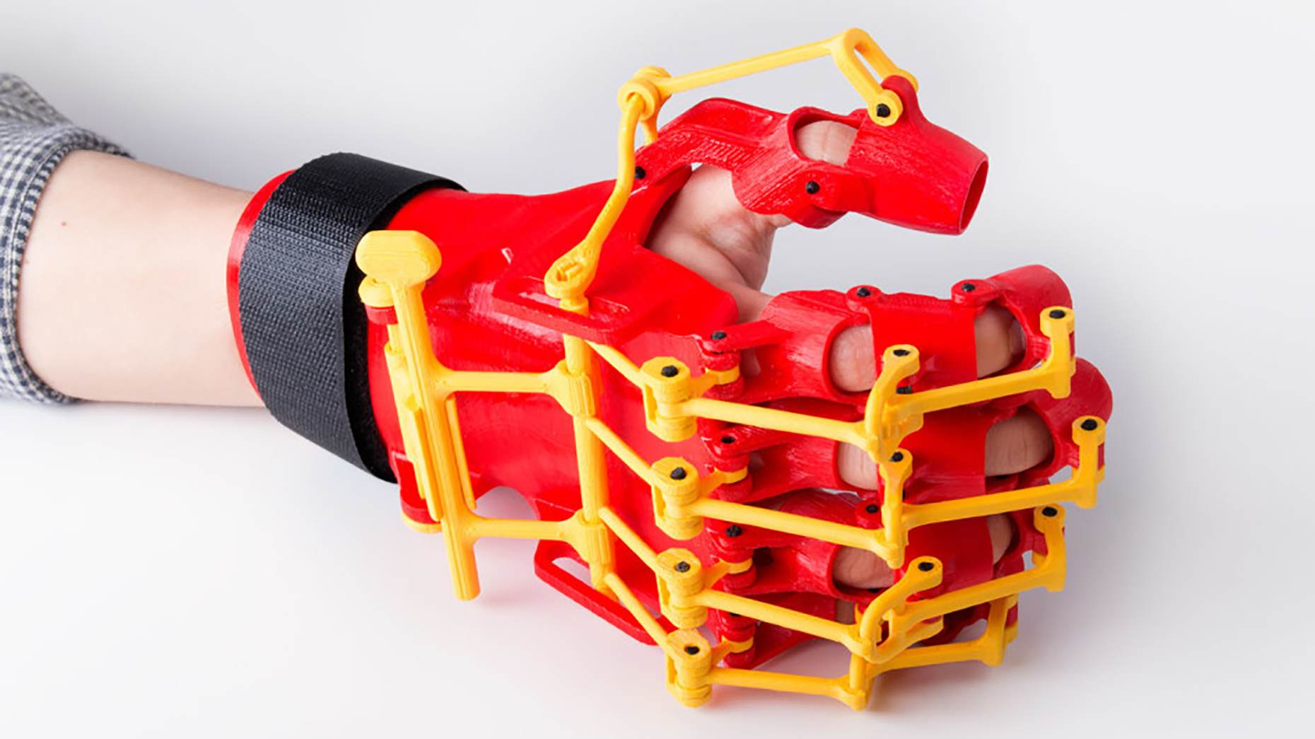 3D-printed Orthosis Helps Patients Suffering From Mild Paresis 3