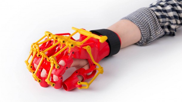 3D-printed Orthosis Helps Patients Suffering From Mild Paresis 4